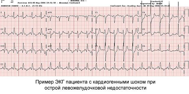 пример кардиогенного шока на ЭКГ при острой левожелудочковой недостаточности