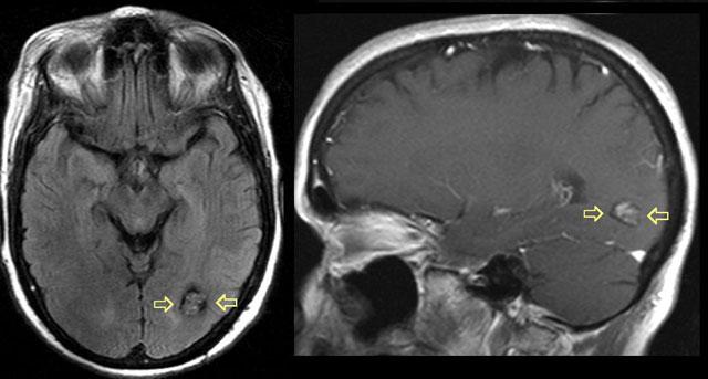 ангиомы головного мозга, КТ снимок