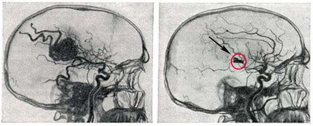 эмболизация ангиомы в головном мозге