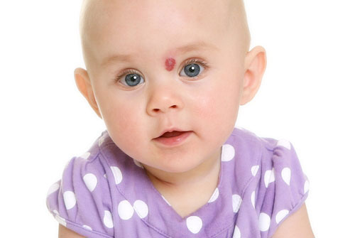 гемангиома у ребенка