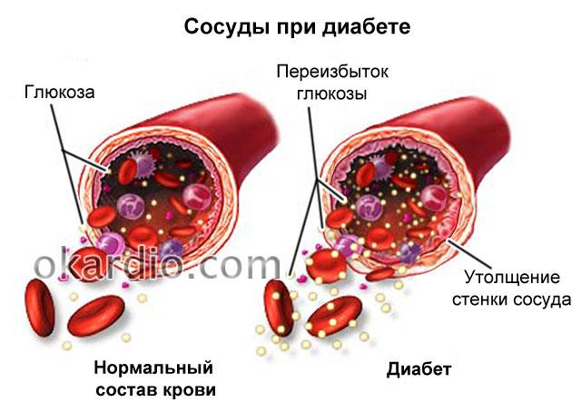 сосуды при диабете