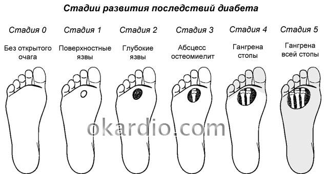 стадии развития диабетической ангиопатии нижних конечностей