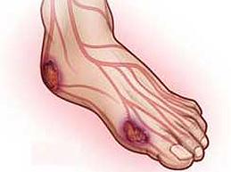 Ангиопатия нижних конечностей при сахарном диабете: полный обзор