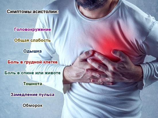 симптомы асистолии