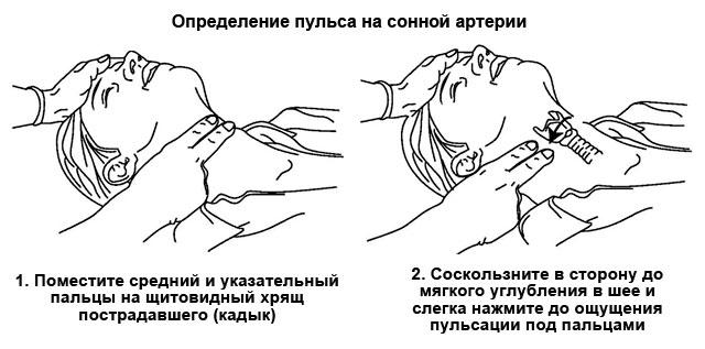 определение пульса на сонной артерии