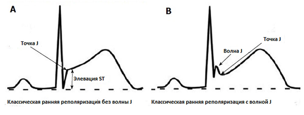 Обзор синдрома ранней реполяризации желудочков: симптомы и лечение