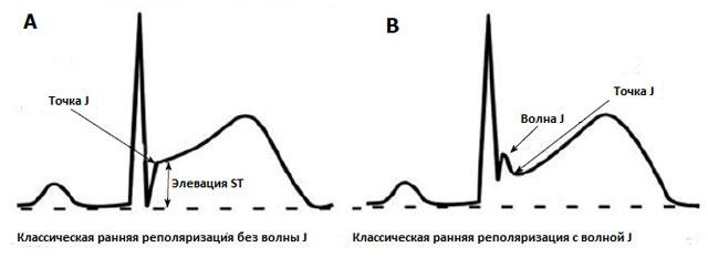 Классическое определение СРРЖ на ЭКГ (элевация сегмента ST)
