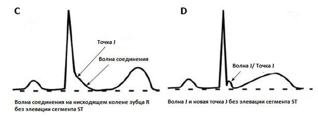 новое определение синдрома СРРЖ на ЭКГ
