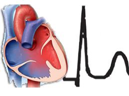 сердце с ранней реполяризацией желудочков на ЭКГ