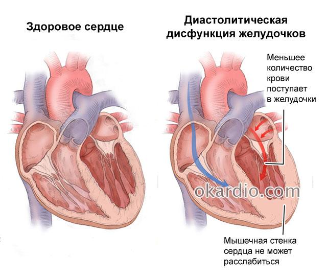 Диастолическая дисфункция левого желудочка 1 типа лечение