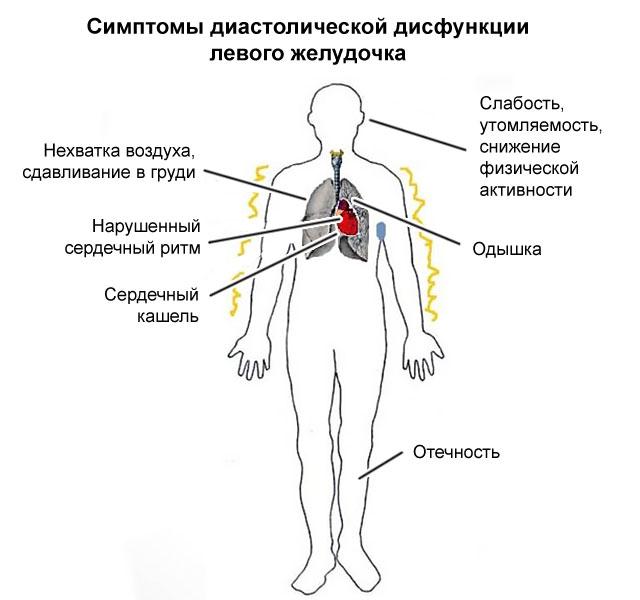 симптомы ДДЛЖ