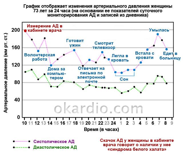график изменения АД на основании СМАД и записей из дневника