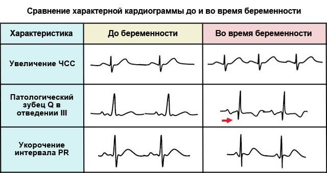 кардиограмма до и во время беременности