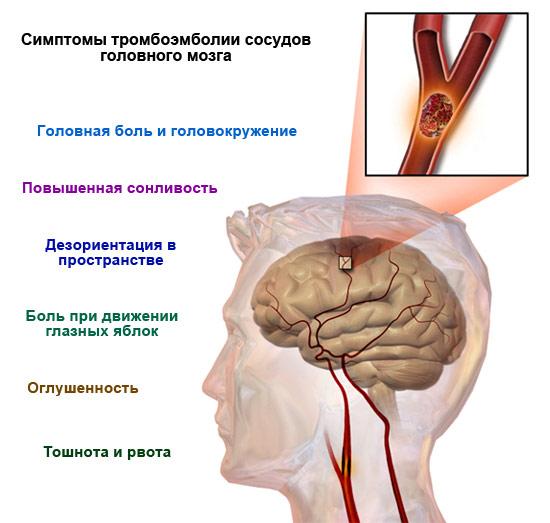 симптомы тромбоэмболии сосудов головного мозга