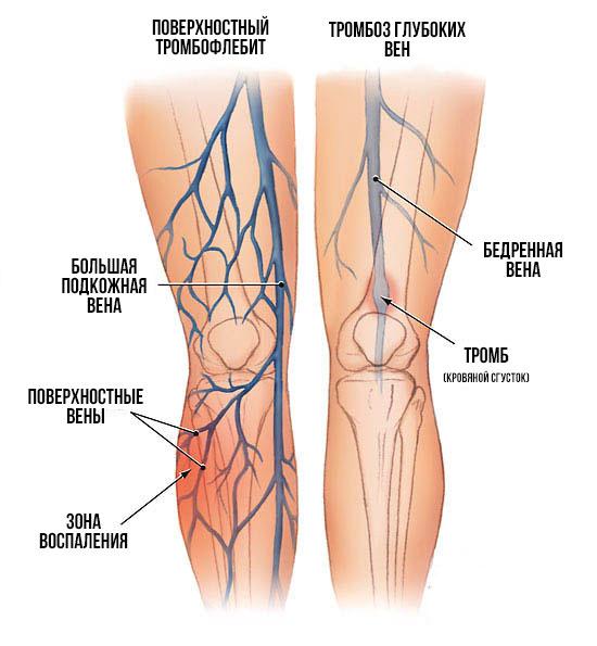 Тромб в ноге: симптомы и лечение, причины, методы диагностики