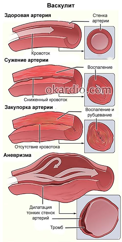 Васкулит причины и симптомы болезни