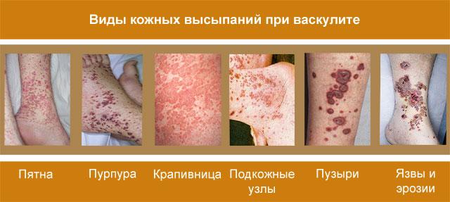разновидности кожных высыпаний при васкулите
