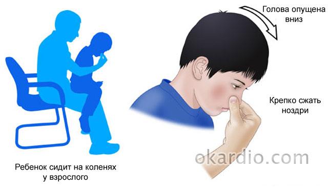 первая помощь при крове из носа у ребенка