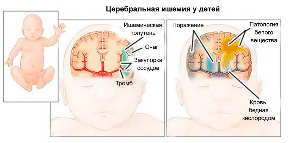 Церебральная ишемия у новорожденного: 1, 2 степень, причины ...