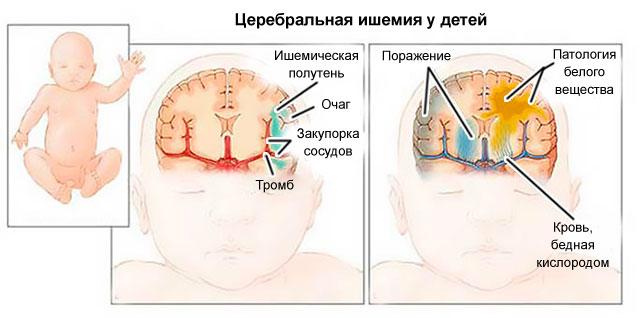 церебральная ишемия 1 степени
