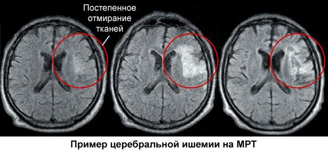 церебральная ишемия на МРТ
