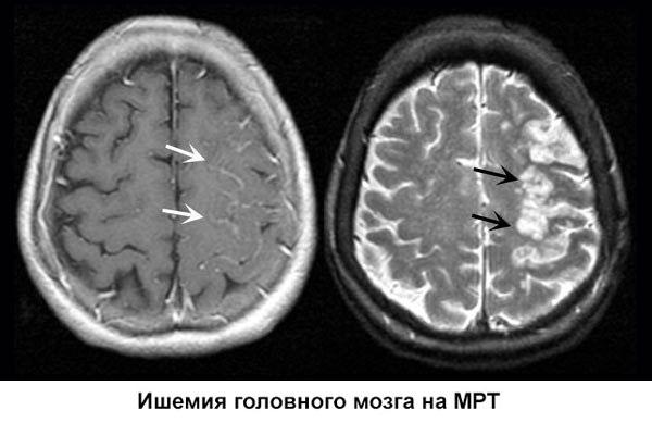 глобальная ишемия головного мозга на МРТ