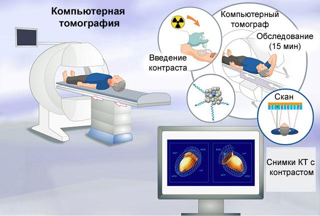 Ишемия головного мозга: что это такое, симптомы и лечение, виды