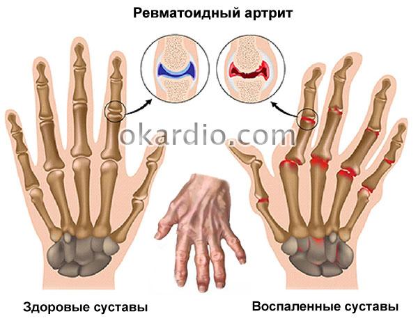 Синдром Рейно: симптомы и лечение, что это такое, причины и диагностика