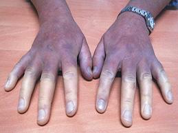 Характеристика синдрома Рейно: что это, симптомы и лечение