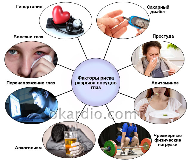 факторы риска разрыва сосудов глаз