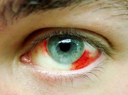 Что делать, если лопнул сосуд в глазу, причины патологии