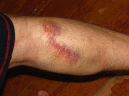 большой синяк от лопнувшей вены на ноге