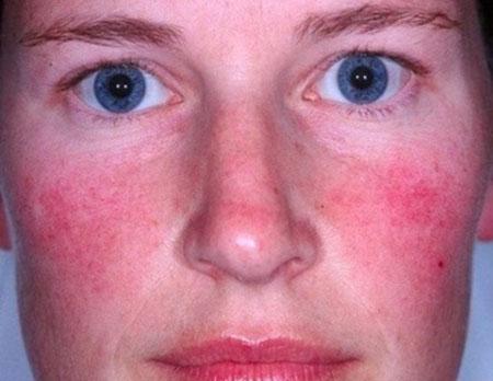 Полное описание купероза: причины симптомы и лечение