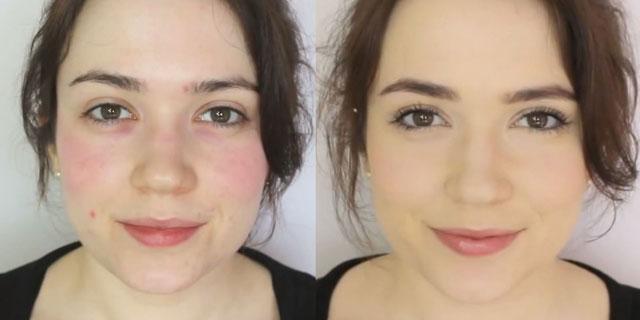 макияж при куперозе