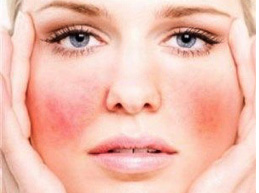 купероз на лице у женщины