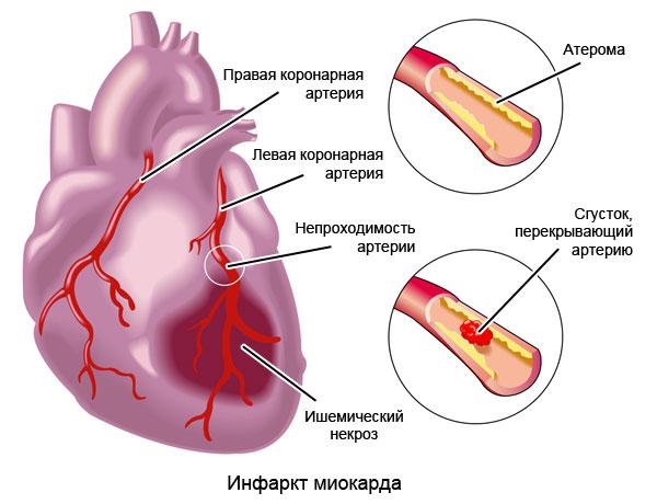 инфаркт миокарда – очаг ишемического некроза сердечной мышцы