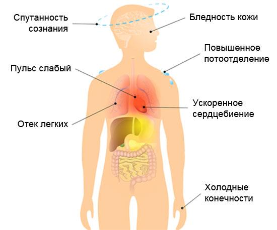визуальные симптомы кардиогенного шока