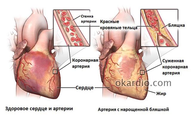 здоровая коронарная артерия и пораженная атеросклерозом