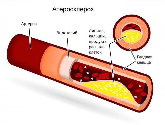 артерия при атеросклерозе в разрезе