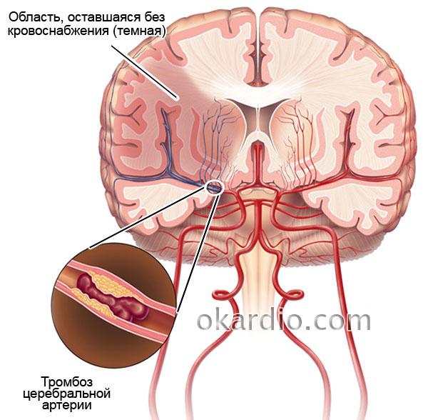 Дисциркуляторная энцефалопатия 2 степени (ДЭП): симптомы и лечение
