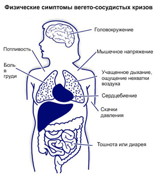 симптомы кризов ВСД