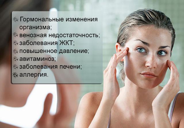Сосудистые звездочки на лице: как убрать, причины и симптомы