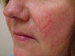 Стадии и симптомы, как избавиться от сосудистых звездочек на лице