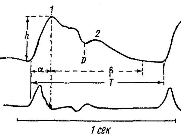 нормальная реоэнцефалограмма и пульсовая волна