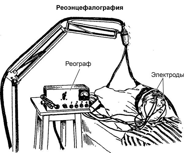 устройство аппарата для РЭГ