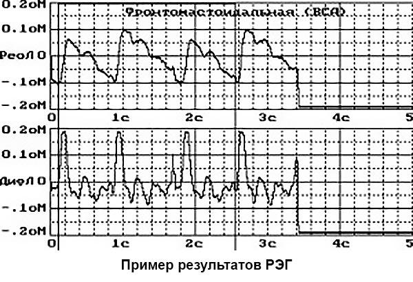 пример результатов РЭГ