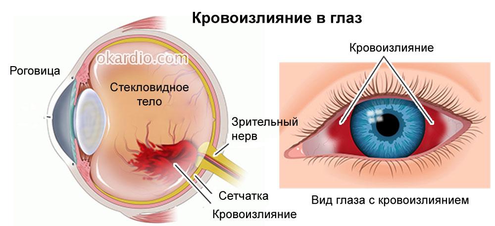 гемофтальм лечение лекарственные препараты