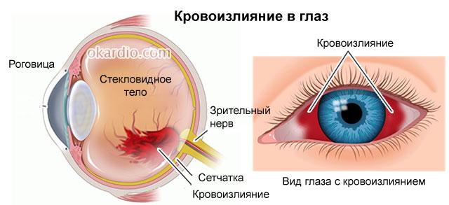 кровоизлияние глаза