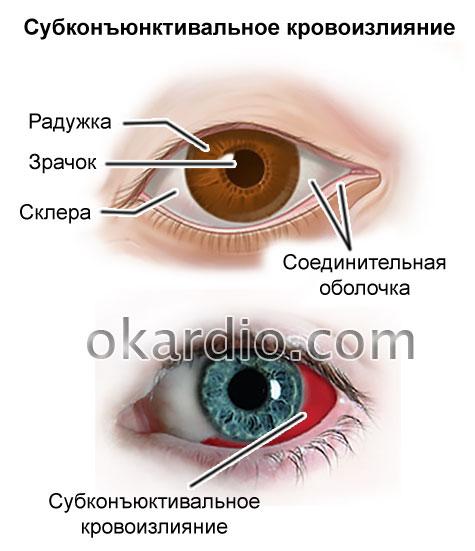 субконъюнктивальное кровоизлияние в глаз