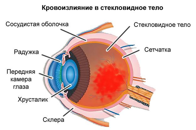 кровоизлияние в стекловидное тело